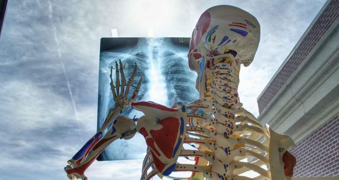 ロマン・バルデ最悪骨折も?X線検査へ