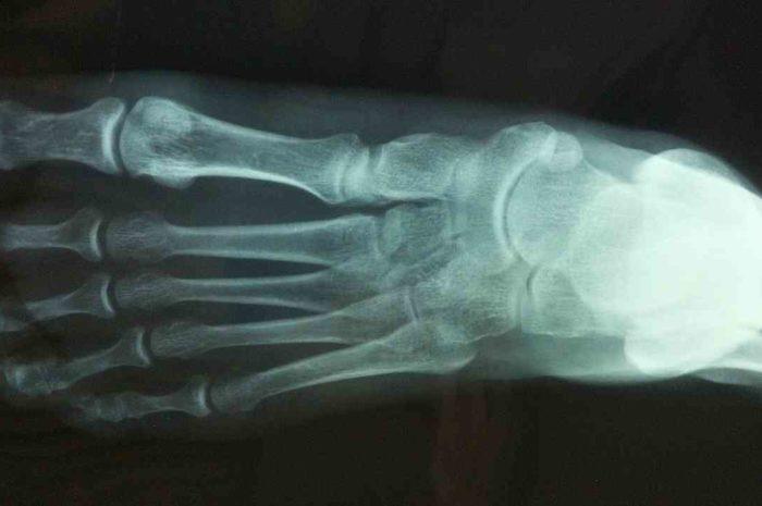 【ダウンチューブ崩壊の画像あり】トム・ピドコックがトレーニング中に落車で鎖骨骨折